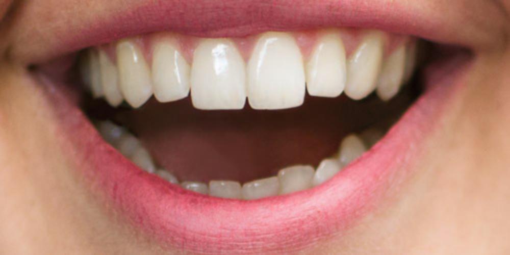 bilde av smile tannlegene på Fornebu